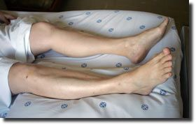 Médico opera joelho errado